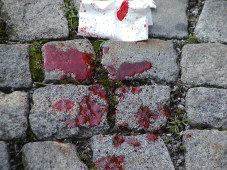 Free Stock Photo of Pool of Blood on the pavement