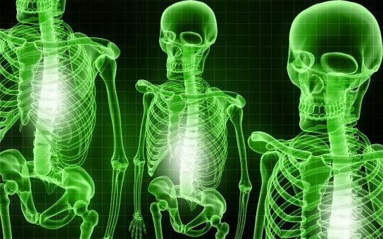 Free Stock Photo of Skeletal X-Ray - Green Background