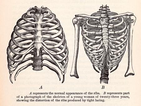 Free Stock Photo of Human Ribcages, Circa 1911