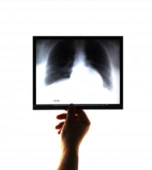Free Stock Photo of Doctor examining and holding an x-ray image in his hand