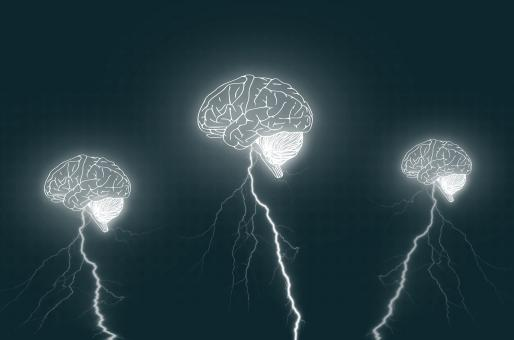 Free Stock Photo of Brainstorm - Three brains with lightning bolts