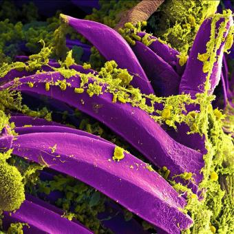 Free Stock Photo of Bacteria