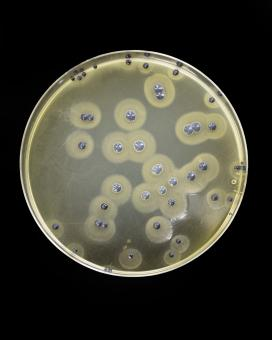 Free Stock Photo of Bacteria growing on agar