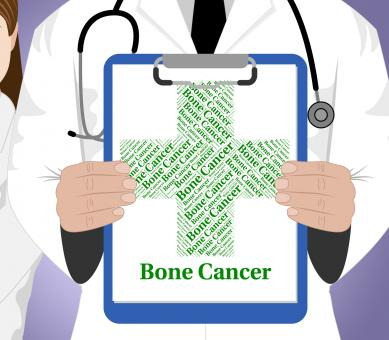 Free Stock Photo of Bone Cancer Means Cancerous Growth And Ailment