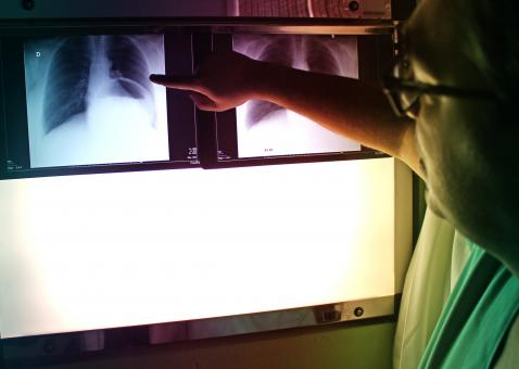 Free Stock Photo of Doctor Pointing to X-Ray Picture - Chest PA Radiography