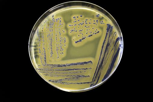 Free Stock Photo of Staphylococcus Aureus