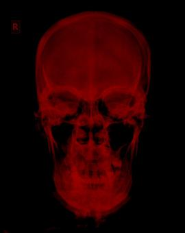 Free Stock Photo of Red Radiograph Xray of Skull