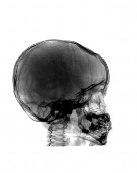 Free Stock Photo of Head and Neck  X ray on White