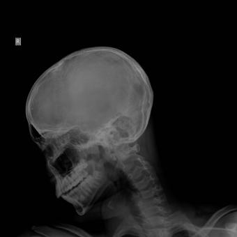 Free Stock Photo of A schedel AP radiograph of the skull and neck