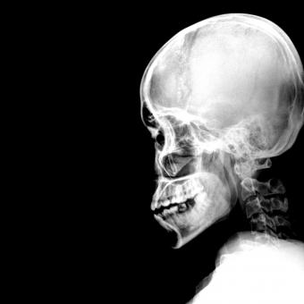 Free Stock Photo of A Schedel AP radiograph of the skull - Black and White