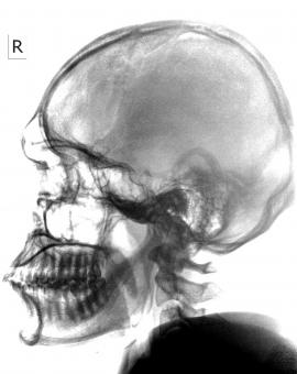 Free Stock Photo of Radiograph of a Head and Neck on White Background