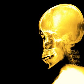 Free Stock Photo of A Schedel AP radiograph of skull - Yellow on black