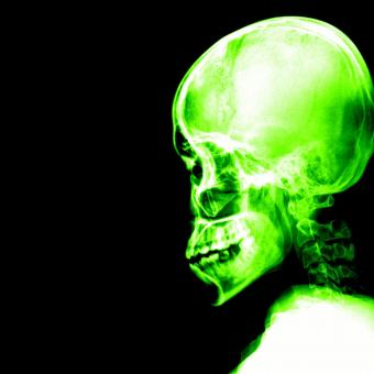 Free Stock Photo of A Schedel AP radiograph of the skull - Green on Black