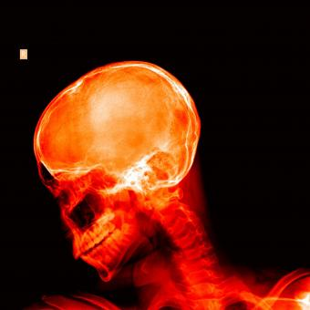 Free Stock Photo of X-ray of a skull - Red on black
