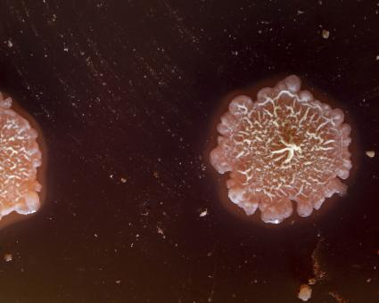 Free Stock Photo of Morphology of Geobacillus stearothermophilus