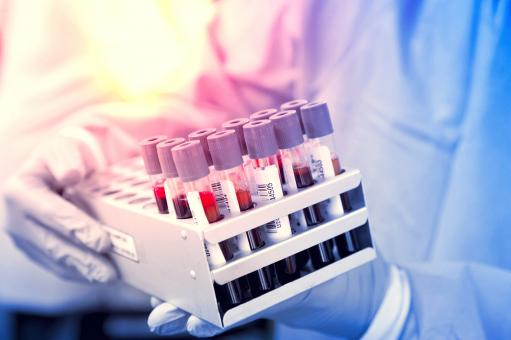 Free Stock Photo of Blood Samples - Blood Tests - Medical Tests