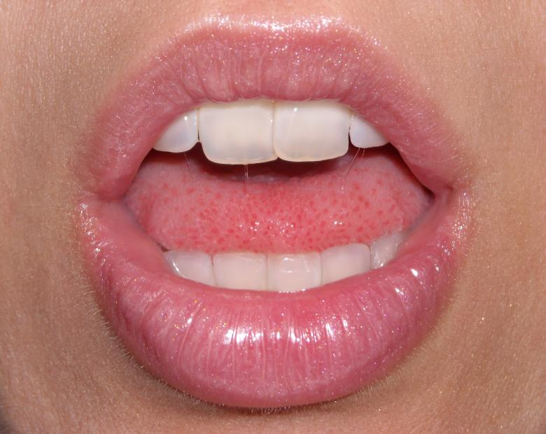 Free Stock Photo of Lips with gloss Created by dragon