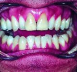 Free Photo - Teeth
