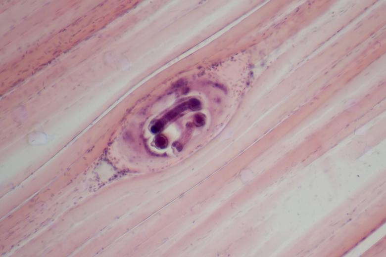 Free Stock Photo of Trichinella spiralis Created by Geoffrey Whiteway