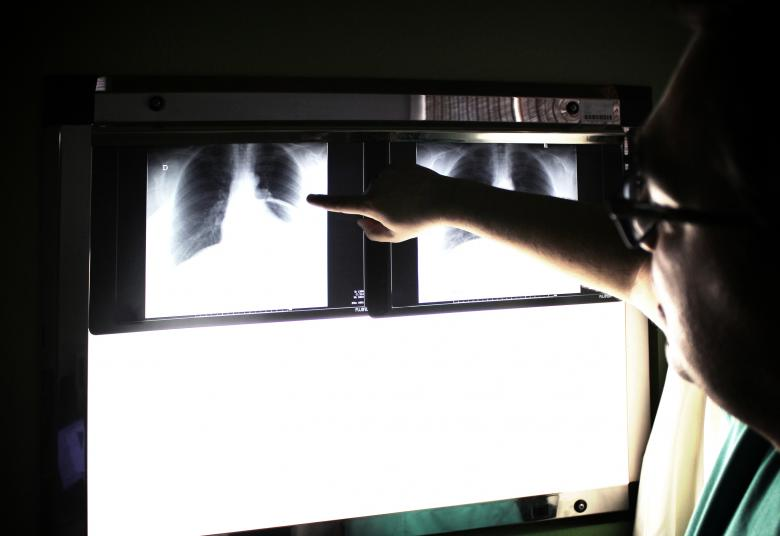 Free Stock Photo of Medical doctor pointing to an x-ray image Created by Jack Moreh