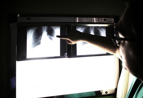 Medical doctor pointing to an x-ray image - Free Stock Photo