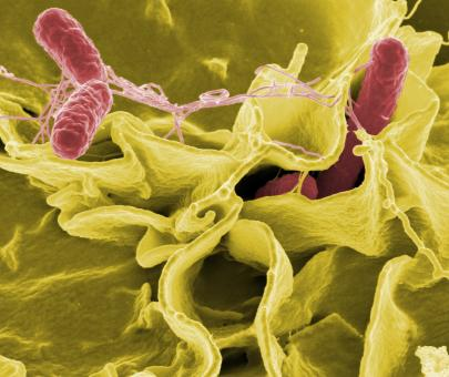 Salmonella - Free Stock Photo