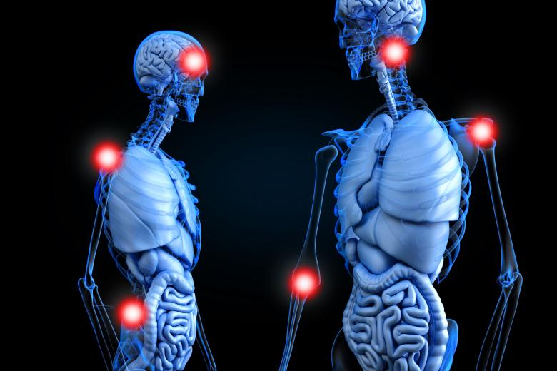 Chronic Pain Points - Painful Areas in the Human Body - Free Medical Stock Photos