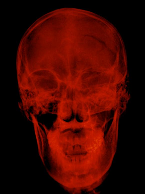 Free Stock Photo of Red radiograph xray of a skull Created by Sugiyatno