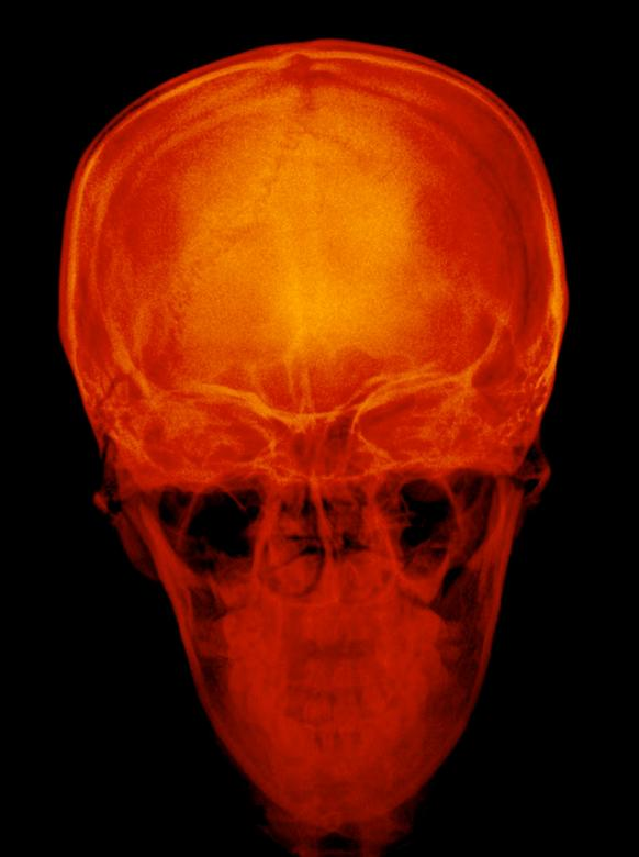 Free Stock Photo of Radiograph x ray of Skull Created by Sugiyatno