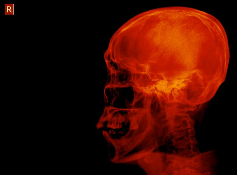 Free Stock Photo of Human Skull Radiograph Created by Sugiyatno