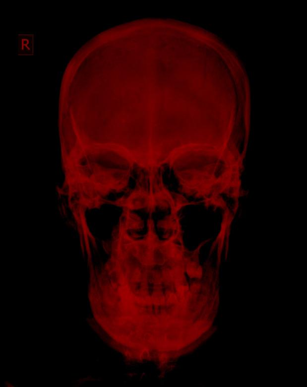 Free Stock Photo of Red Radiograph Xray of Skull Created by Sugiyatno